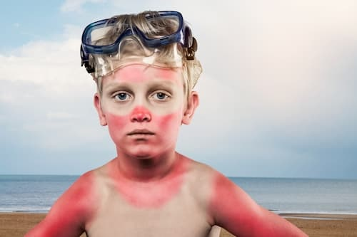 boy with painful sunburn